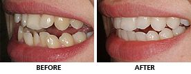 An Inman Aligner was used to align the upper teeth in 10 weeks and the more crowded lowers took 12 weeks, also with an Inman Aligner. http://www.praisdental.co.uk/straightening/