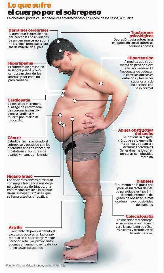Lo que sufre un cuerpo con sobrepeso. #infografia #salud
