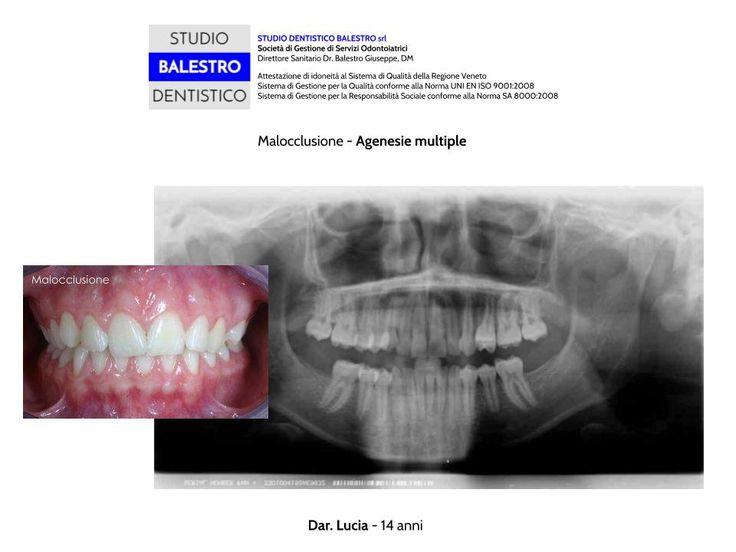 STUDIO DENTISTICO BALESTRO Casi clinici ortodontici - Agenesie multiple http://www.studiodentisticobalestro.com/2014/09/malocclusione-con-agenesie-multiple.html