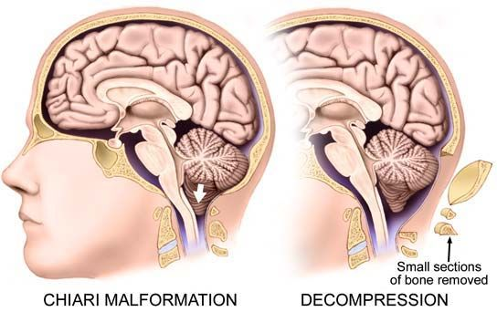 Some Facts About Chiari Malformation That Most People Dont Know