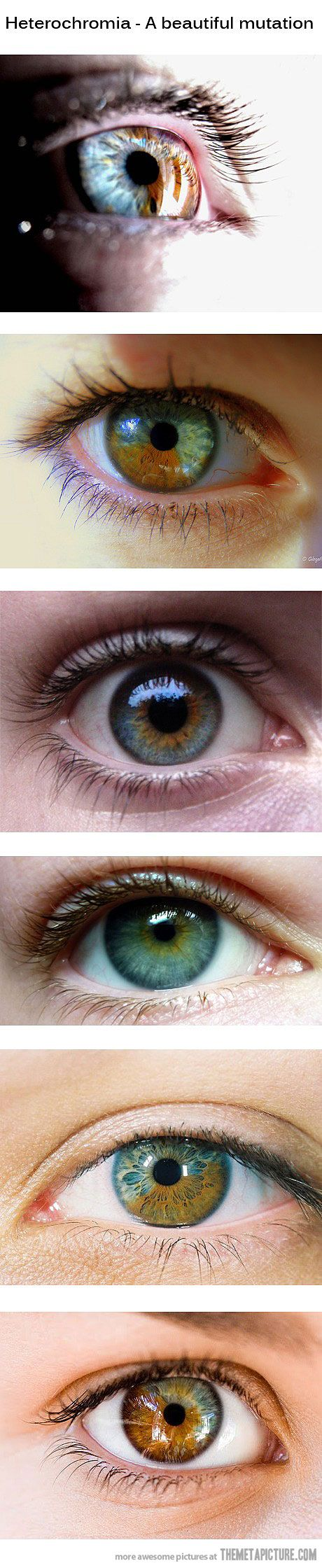 This post only shows sectoral heterochromia, or when one eye has two different colors. Heterochromia is usually when a person has two eyes with different colors.
