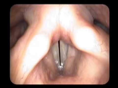 video stroboscopy of the vocal cords. Repinned by SOS Inc. Resources.  Follow all our boards at http://Pinterest.com/sostherapy for therapy resources.: Vocal, Speech Language Pathology, Voice, Adult Speech, Slp Graduate School, Education, Therapy, Speech Language Ideas