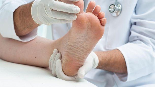 Schuppige Haut kann auch auf einen Pilz hinweisen. (Quelle: Thinkstock by Getty-Images)