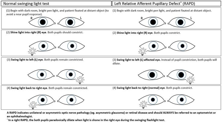 Relative Afferent Pupillary Defect