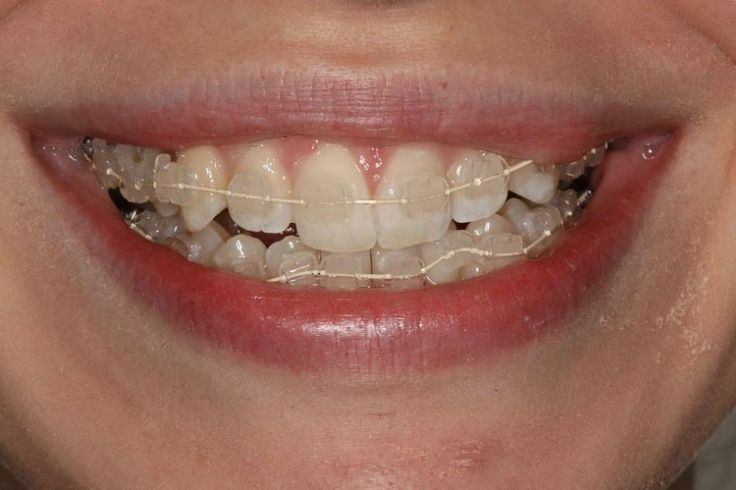 kind of the invisible braces