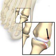 jicht symptomen teen voet behandelen