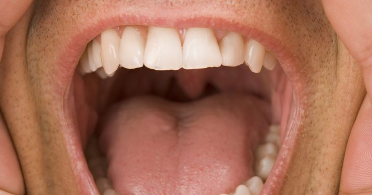 Cómo eliminar el sarro en casa. El sarro es un depósito que se forma en los dientes debido a las técnicas inadecuadas en el cepillado y en el uso del hilo dental. El sarro se forma cuando la placa permanece en los dientes y se endurece. Puedes visitar a tu dentista para que haga el trabajo o probar algunos remedios caseros que probablemente te ayuden a eliminar la acumulación de ...