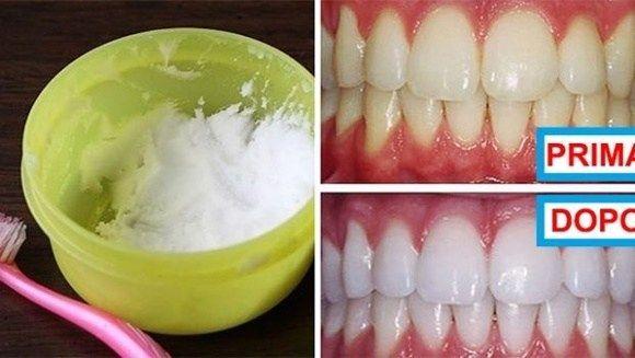 Lo sbiancamento dei denti utilizzando prodotti chimici oltre ad essere un male per i tuoi denti, è anche molto costoso. Ecco un modo semplice, naturale ed economico per sbiancare i tuoi denti, che …