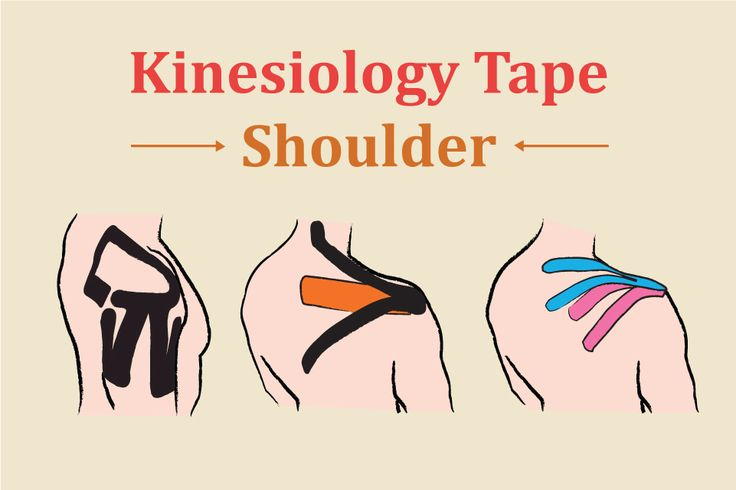 Kinesiology tape shoulder kinesiology taping