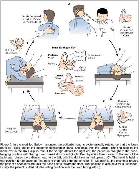 Natural Remedies For Bppv