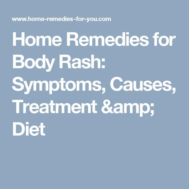 Home Remedies for Body Rash: Symptoms, Causes, Treatment & Diet