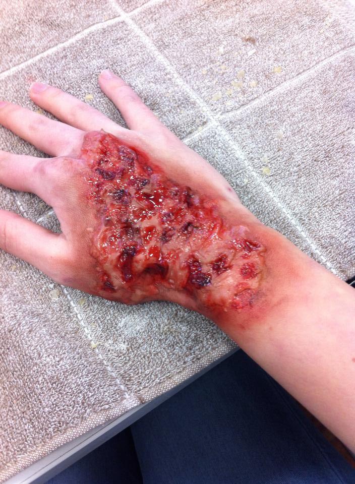 sfx makeup burn