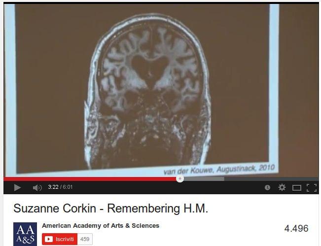 Il cervello di Henry Molaison / Remembering Psychology's Most Famous Brain