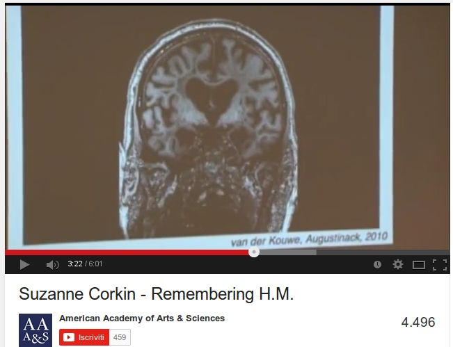 Il cervello di Henry Molaison / Remembering Psychology's Most Famous Brain