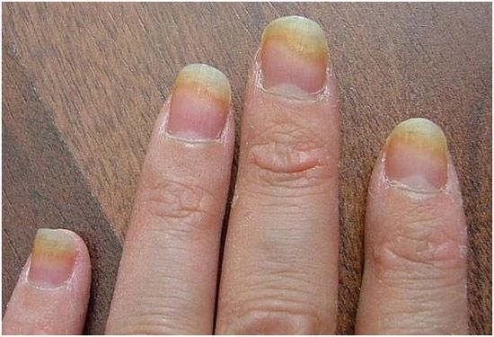 How To Avoid Nail Infections?