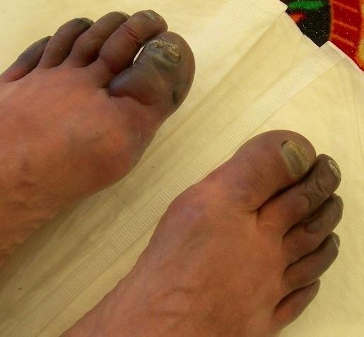 frostbite voeten