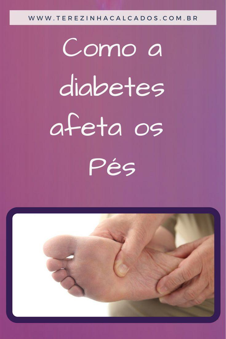 """""""A DIABETES NO PÉ"""" Como a diabetes afeta nervos da perna e a circulação, o pé é uma das partes que mais  se deve tomar cuidado. Sintomas como formigamento, dormência, dor, queimação e fraqueza nas pernas  e pés são indícios da neuropatia diabética. A neuropatia diabética, quando não tratada  corretamente, leva a amputação de membros. Por atacar silenciosamente, quem sofre com  a diabetes deve constantemente fazer exames no pé."""