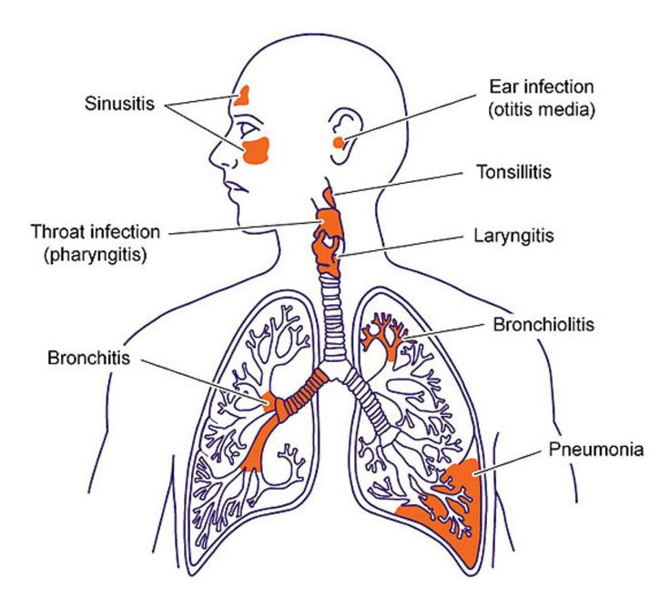 best 20+ lower respiratory tract infection ideas on pinterest, Human Body