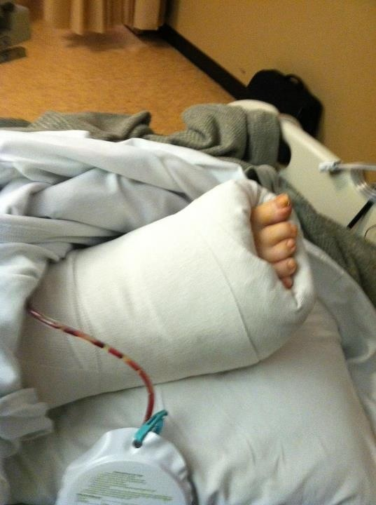 An ankle/ heel fusion surgery was needed because of the ...