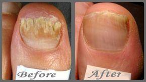 Fingernail Fungus Home Remedies
