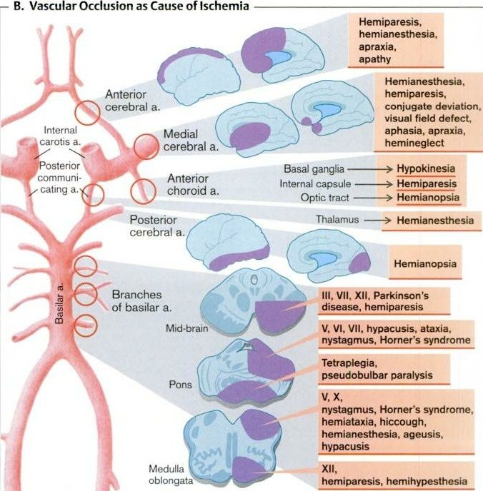 awesome summary of stroke location / lesion / deficits..... succinct!