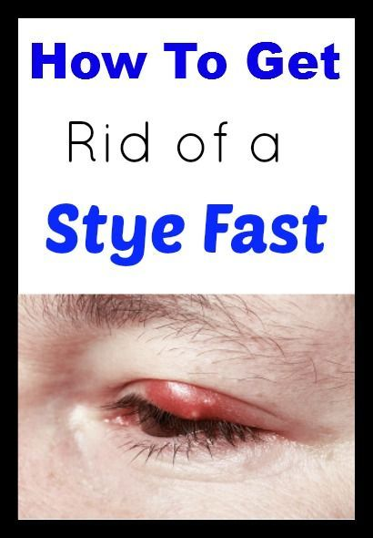 Natural Ways To Get Rid Of An Eye Infection