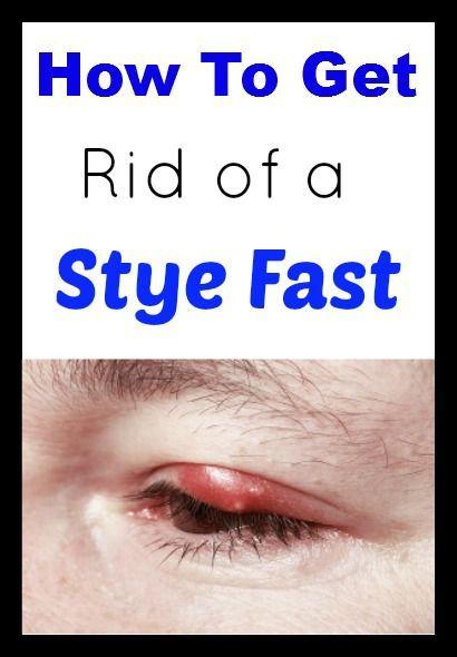 Stye Under Eye Natural Treatment