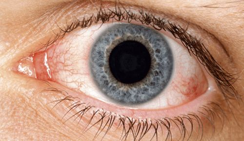 Rimedi naturali per la secchezza oculare - Vivere più sani
