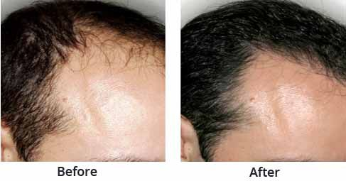 Find the best Cost of hair transplant in New Delhi and get the Hair loss treatment in New Delhi. Visit our website and find highly experienced and skilled hair doctors in New Delhi.