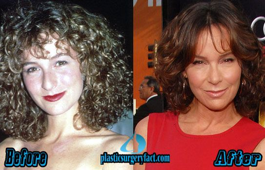 Jennifer Grey Before and After Plastic Surgery | Worst Celebrity Plastic Surgery | http://plasticsurgeryfact.com/too-much-plastic-surgery-before-and-after-worst-celebrity-plastic-surgery/