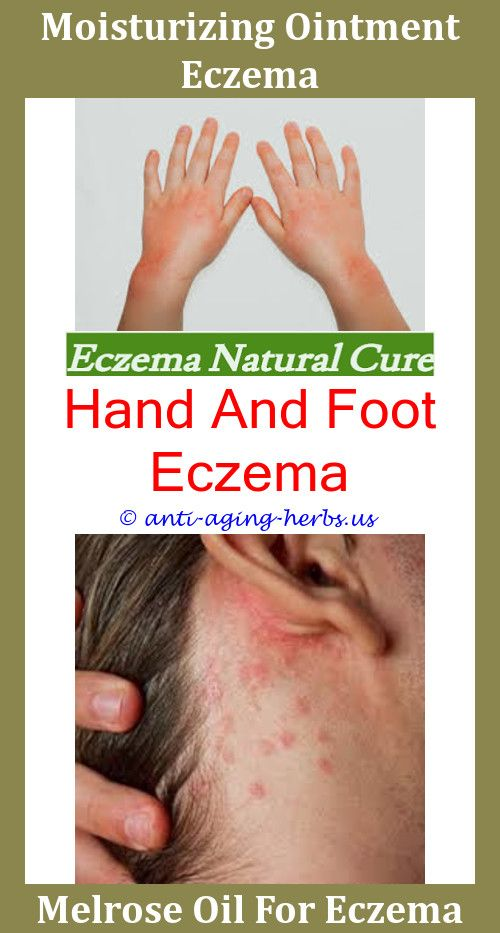 1 guidance atopic eczema in under 12s diagnosis and - 500×933