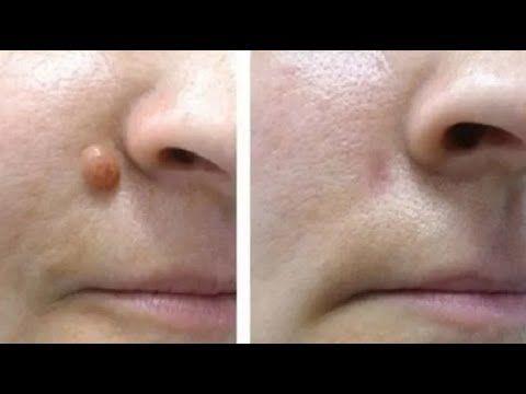 Como Eliminar Verrugas En 15 Minutos Usando Un Sólo Ingrediente - YouTube