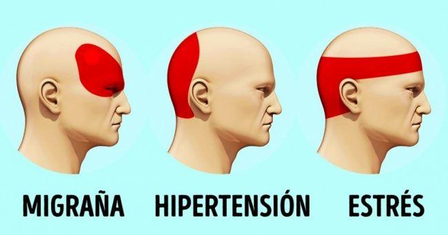 Dolor de cabeza causado por hipertensión