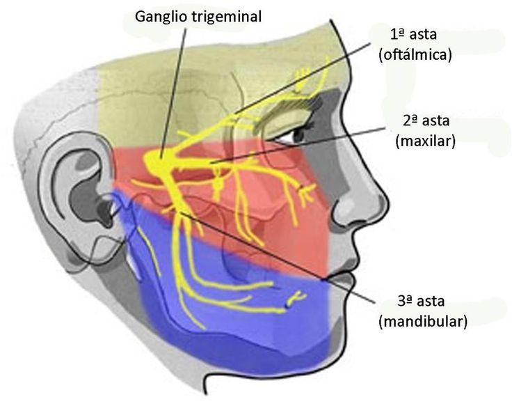 Neuralgia del trigemino.El nervio se trabajara con crioterapia. Se pueden utilizar bolas o paquetes pequeños de hielo picado, fáciles de adaptar a la cara. Es necesario, que se coloque un paño entre el agente y la piel para evitar la irritación, ya que la piel es mucho más delicada acá aparte de la disminución de sensibilidad por parte del paciente. El tiempo oscila alrededor de 10 o 15 minutos, con constante revisión para evitar lesiones. También, masajes con hielo en el inicio del nervio.