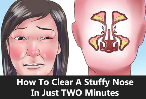 How To Clear A Stuffy Nose In Just TWO Minutes. A stuffy nose can be annoying. Check out this trick that can unblock your nose in 2 minutes.