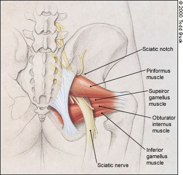 piriformis  muscle, impinges the sciatic nerve....  the deep 6, hip muscles, hamstring 'tear', trigger point