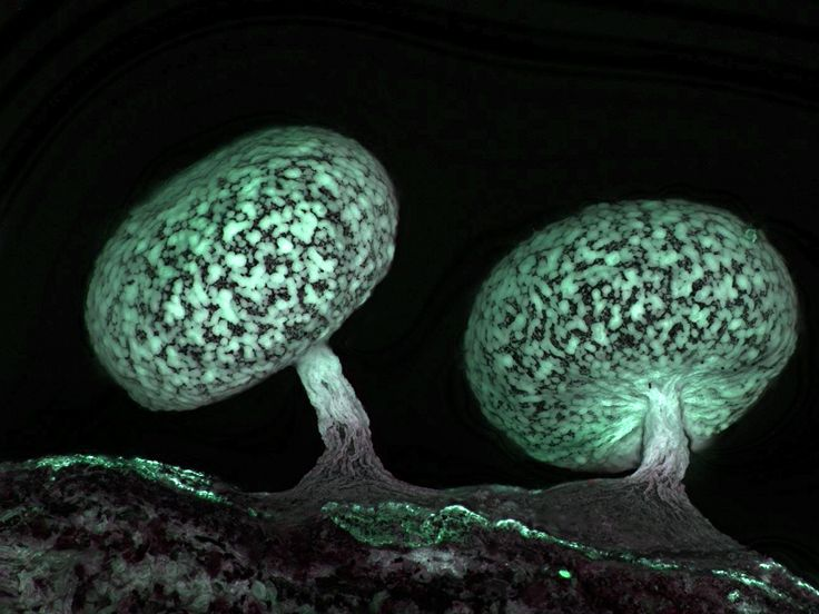 Spore-y McSporeface! Image of the Week – November 6, 2017  CIL:41636 - http://www.cellimagelibrary.org/images/41636  Fluorescent image of the sporangium, an enclosure in which spores are formed, of the slime mold Physarum leucophaeum. Honorable Mention, 2011 Olympus BioScapes Digital Imaging Competition®  Dalibor Matýsek and 2011 Olympus BioScapes Digital Imaging Competition®  CC - by-nc-nd