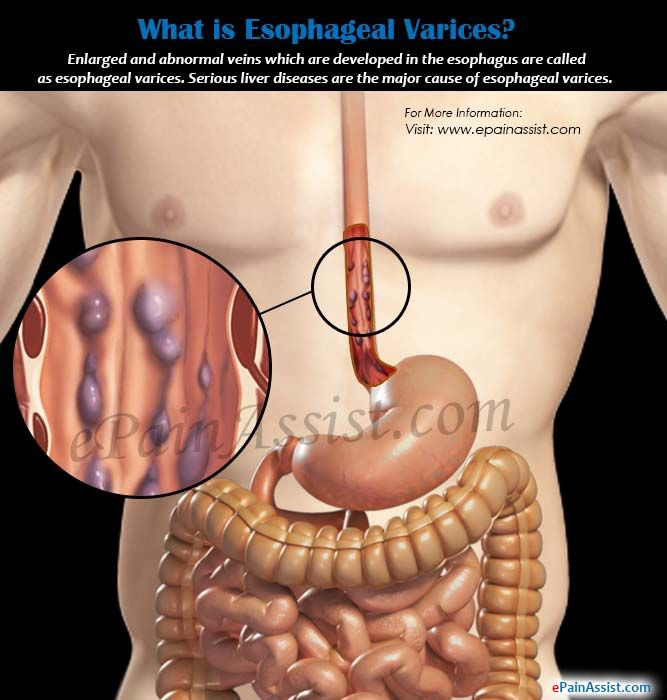 What is Esophageal Varices?