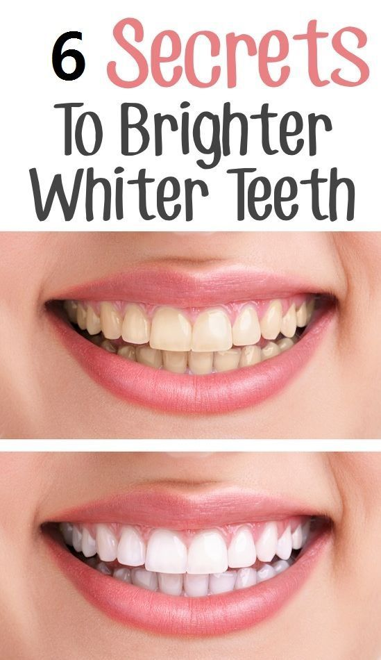 6 Tips For Sparkling White Teeth
