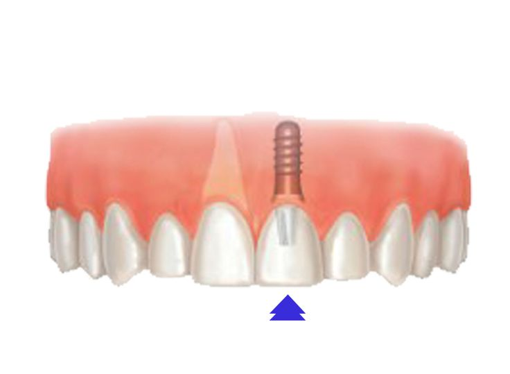 Dental implants are screw-like devices made of titanium and are put in the jawbone to replace missing teeth. It is allowed to remain there for a period of 6 weeks to 6 months. It costs around USD 36000 in developed countries like the USA while the procedure costs about USD 400 in developing countries like Turkey. To get a free quote for an affordable ear treatment, visit: http://www.medhalt.com/affordable-dental-implants-abroad/