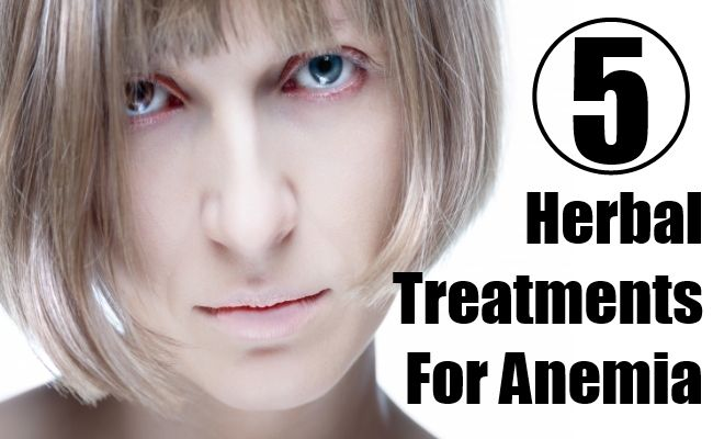 Herbal Treatments For Anemia;The root of yellow Dock, Nettleroot,Alfalfa,Dandelion And Burdock Root,Spirulina