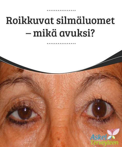 Roikkuvat silmäluomet - mikä avuksi?   Löysät ja roikkuvat #silmäluomet saavat meidät näyttämään vanhemmalta kuin mitä #todellisuudessa olemme. Löysät silmäluomet voivat #pahimmillaan haitata näköä.  #Kauneus