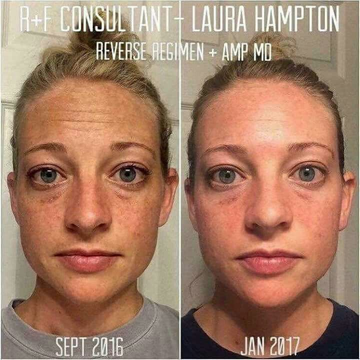Are you tired of those pesky brown spots or that sun damage that you acquired last summer and can't seem to get rid of? I have just the product you need to assist in reversing that damage! Why not give REVERSE a try along with the AMP MD Roller? I can assure you that you will NOT be sorry you tried these products. Time for a change? I think so!