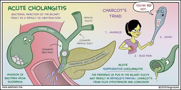 cholangitis vs cholecystitis Google Search Med surg