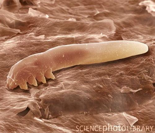 """""""Color micrografía ácaro Pestañas electrónica de barrido (SEM) de una pestaña o folículo, ácaro (Demodex folliculorum), un parásito inofensivo que vive dentro de los folículos pilosos humanos."""" -"""