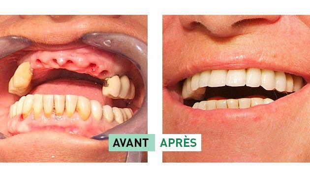 Besoin d'un #implant #dentaire ?! Comparez une dizaine de meilleures #mutuelles spécialisées et optez pour une qui le rembourse au mieux