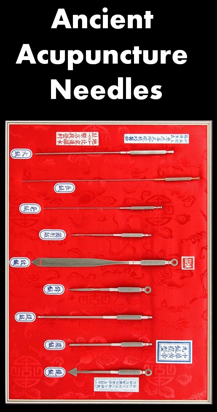 15 best acupuncture needles images on pinterest acupressure nine classical needles ancient needles solutioingenieria Gallery