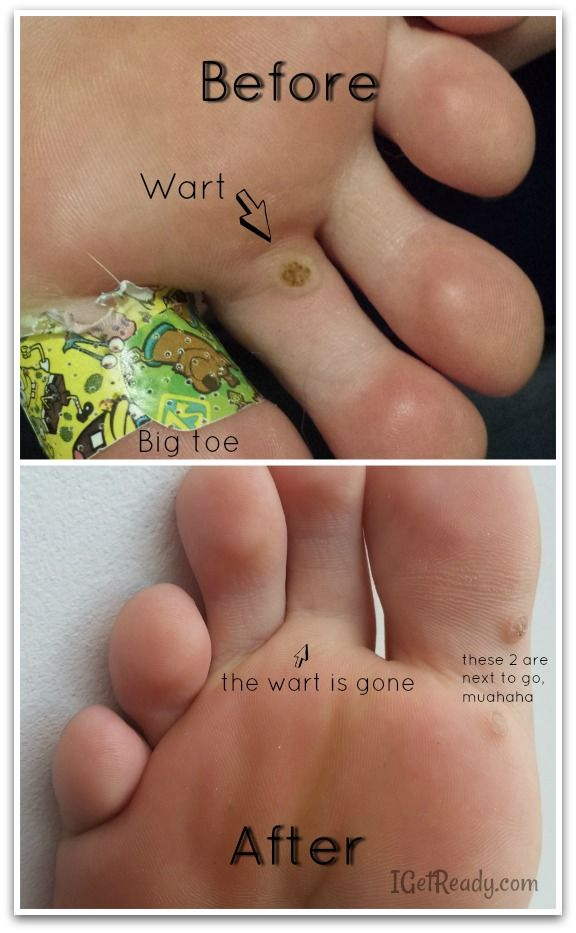 Finally a wart remover that works. No more caustic chemicals or little duct tape squares that won't work anyway. Natural, safe and pain-free wart remover.