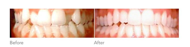 Clear braces http://www.infinitydental.ca