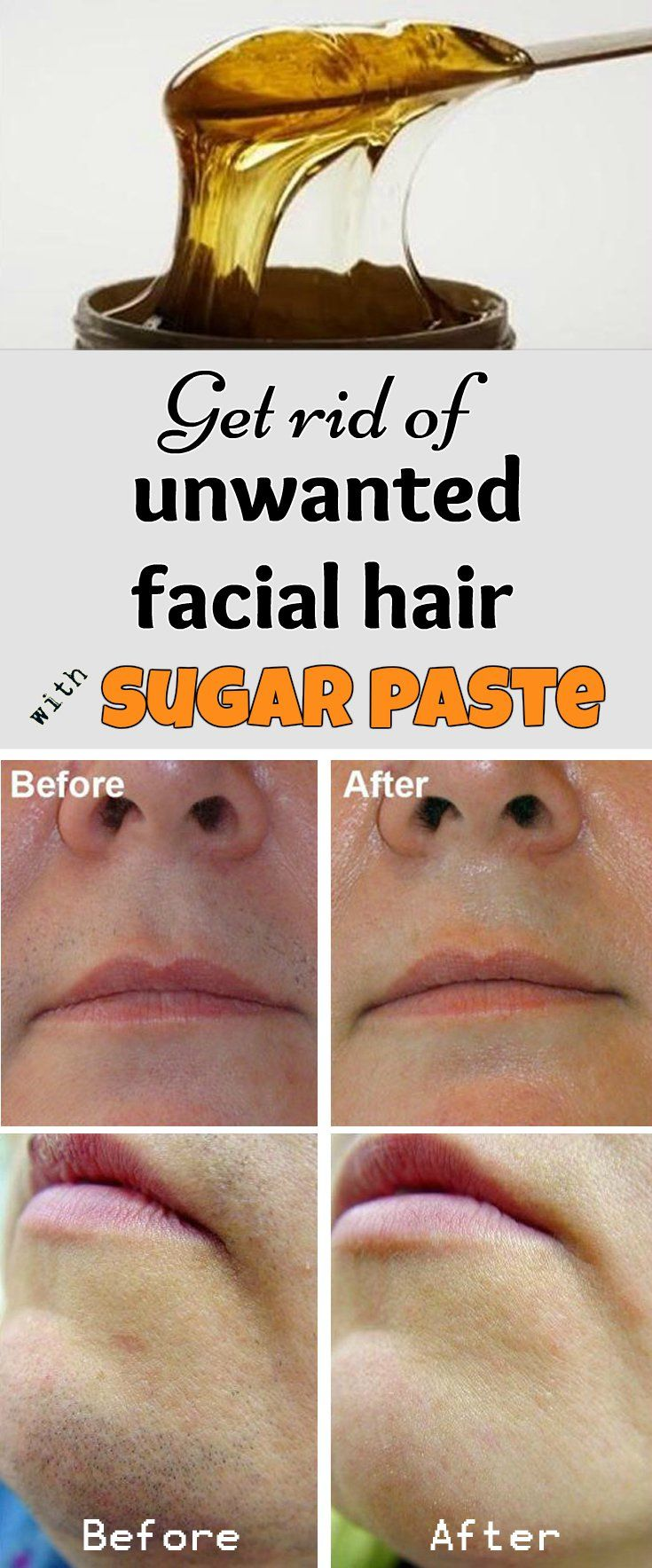 Get rid of unwanted facial hair with sugar paste
